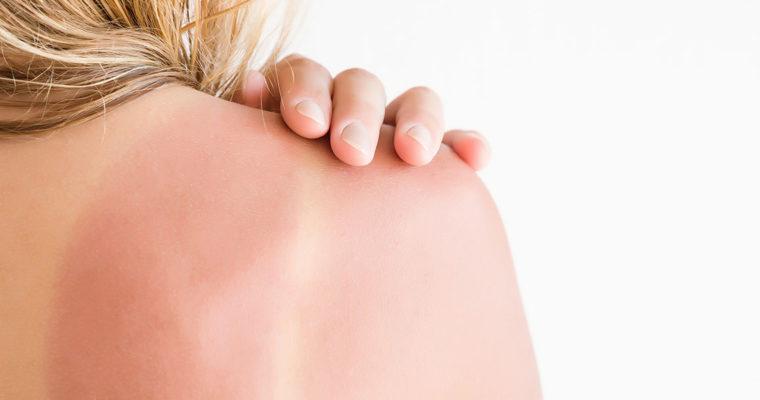 Tipy pro zklidnění spálené pokožky